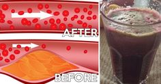 Drink This Once A Day And You Will Unclog Your Arteries Naturally! http://savingzev.1ovirality.us/client/eVVWe/bkZEJ/erkNW/nzrvD?utm_campaign=crowdfire&utm_content=crowdfire&utm_medium=social&utm_source=pinterest