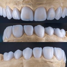 We're always improving our skills to satisfy our clients. Check out @drericdds for clinical photos when this case is complete. #waxup #smilemakeover #dentistry #dentist #aestheticdentistry #dentalphotography #photography #dentallab #dentaltechnician #restorativedentistry #cosmeticdentistry #ensmiledesign #toothgenieds