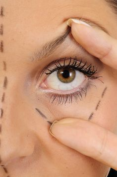 Ft. Laudersdale Eyelid Surgery