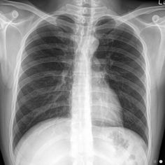 Normal chest x-rays   Radiology Case   Radiopaedia.org