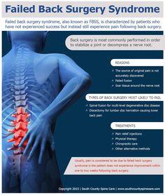 Spinal Cord Stimulator Implant Spinal Cord Stimulation
