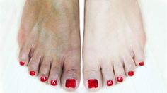 We all use this ingredient in kitchen but very few know that it can make your feet fairer instantly