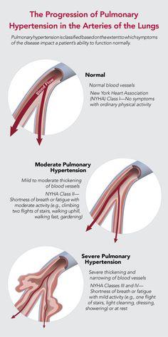 Pulmonary Hypertension Graphic