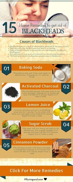 Best Homemade Peel Off Face Mask Recipes to help you with Blackheads Acne and Skin Blemishes. DIY masks made of Honey Charcoal Cucumber etc. Blackhead Remedies, Blackhead Mask, Remedies For Blackheads, Herbal Remedies, Blackhead Remover, Health Remedies, Face Mask For Blackheads, Get Rid Of Blackheads, Clear Blackheads