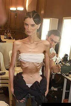 Anorexia is not beautiful, I don't understand how she can see herself as pretty! Easy Weight Loss, How To Lose Weight Fast, Reduce Weight, Super Skinny Models, Skinny Fashion, Crazy People, Real People, Thinspiration, Body Image