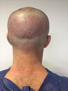Posoperatorio inmediato de #microinjerto capilar sin cicatriz Www.microinjertocapilar.com.ar