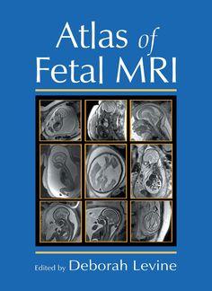 Buen atlas de anatomía fetal por RM