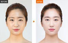 #Banobagi #Plasticsurgery #Cosmeticsurgery #Beauty #Women #Gangnam #Seoul #Korean #Makeover #Life #Health #filler #volume #fatgraft #fatgrafting #kbeauty #beautiful #newlife #changelife #plasticsurgeryinkorea For More Information in English,http://m.engbanobagi.com Email: english@banobagi.com WhatsApp : +82-10-2216-6508