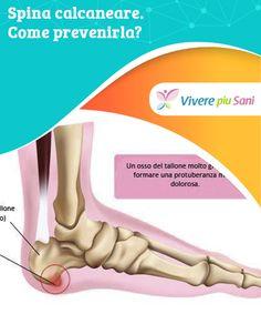 Spina #calcaneare. Come prevenirla?   #Spina calcaneare: #cos'è e come #prevenirla.