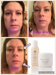 Face Skin, Nu Skin, Botox Results, Botox Before And After, Botox Alternative, Instant Face Lift, Beauty Secrets, Beauty Ideas, Beauty Products
