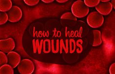 Learn about natural remedies to help speed wound healing. Also includes first aid guidelines and nutrition advice on how to heal wounds faster.