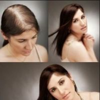 Both men and women can suffer from hair loss. There are many reasons behind hair loss with some being genetics or the very common disease in men called male pattern baldness (MPB). This article will help you to discover effective ways to treat hair loss w Male Pattern Baldness, Stop Hair Loss, Dht Hair Loss, Hair Loss Women, Hair Loss Remedies, Hair Regrowth, Hair Follicles, Hair Loss Treatment, Hair Treatments