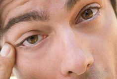 Eye twitching will usually be experienced by everyone at some point in their lives.  For the most part, it's normal, but sometimes can be caused from other disorders.  Here are the causes...