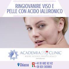 """Academia Day Clinic 📍 Chiasso 📍  Ringiovanire viso e pelle con acido ialuronico  L'acido ialuronico può essere reso solubile nei tessuti, e in questo caso viene usato come biostimolante, oppure gli si può dare una consistenza maggiore e quindi si presenterà come filler, ossia """"riempitivo"""".http://www.academiadayclinic.ch/it/intervento-trattamento-medicina-estetica/filler-con-acido-ialuronico ===========  #acidoialuronicoviso #acidoialuronicovisocontroindicazioni #acidoialuronicorugheviso…"""