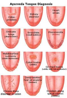 Tongue Health Diagnosis Lots Of Pinnable Charts | The WHOot