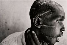 World Press Photo of the Year: 1994 James Nachtwey, USA, Magnum Photos for Time. Rwanda, June 1994. Hutu man mutilated by the Hutu 'Interahamwe' militia, who suspected him of sympathizing with the Tutsi rebels.