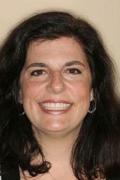 Veneers : Smile Design - Veneers 4-13 http://www.rankipedia.com/dentist/beforeafterajax