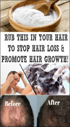 Baking Soda Shampoo: It will Make Your Hair Grow Like It isBaking Soda Shampoo: It is going to Make Your Hair Grow Like It can be Magic! Baking Soda Dry Shampoo, Baking Soda For Dandruff, Baking Soda And Honey, Baking Soda For Hair, Stop Hair Loss, Prevent Hair Loss, Natural Hair Growth, Natural Hair Styles, Natural Face
