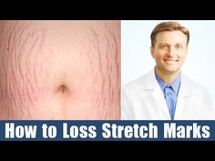 Find Your Body Type: http:& In this video, Dr. Berg explains stretch mark removal in women. You can easily use this method to get rid of . Loose Weight Workout Plan, Loose Weight Without Exercise, Ways To Loose Weight, Dr Eric Berg, Dr Berg, Stretch Mark Cream, Stretch Marks, Weight Chart For Men, Weight Lifting Motivation