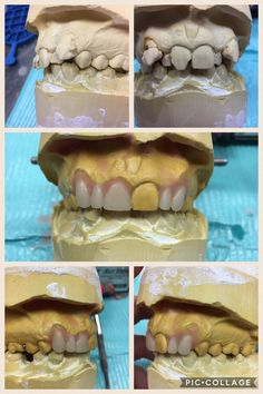 Start to finish with this little gem today. Just a provisional until the patient can get implants.