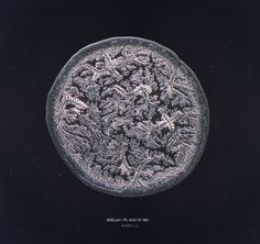 This is a fascinating photography series, which reveals what tears look like when placed under a microscope.