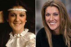 El antes y el después de la estética dental. #laimportanciadelasonrisa @clinicadiamond www.clinicadiamond.com
