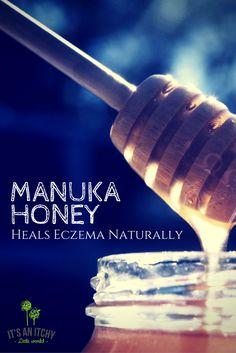 Do you know what makes manuka honey so helpful for eczema?