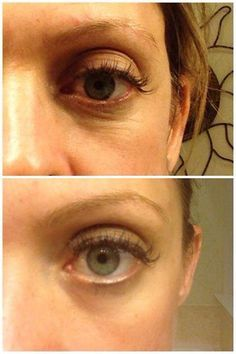 Before and After using REDEFINE ACUTE CARE Skincare For Expression Lines www.delisabrown.myrandf.com  #wrinklewarrior