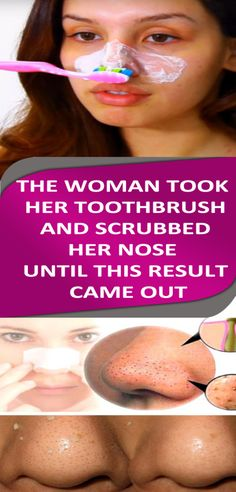 The Woman Took Her Toothbrush And Scrubbed Her Nose Until This Result Came Out! #scrubbernose