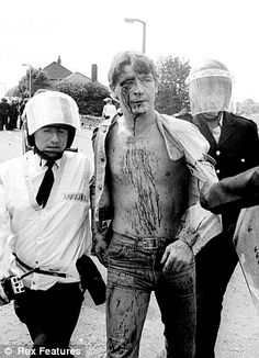 An injured miner being arrested after being severely beaten by London Met Police at the Orgreave Coking Plant, 1984