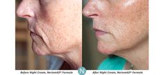 Real Results Gallery | Nerium Real Results | Nerium Intl.