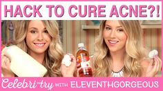 ACNE CURE HACK?! EleventhGorgeous | CelebriTry