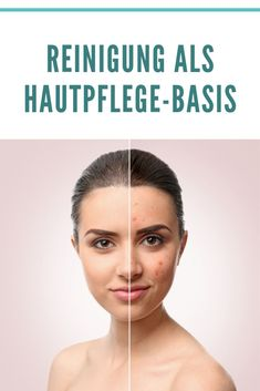 New Ways To Get Rid of Acne Scars! Do you have scars or acne scars on for face or body? With the advancement of technolo. Cellulite, Honey For Acne, Types Of Makeup, Acne Breakout, How To Get Rid Of Acne, Health And Fitness Tips, Flawless Skin, Acne Scars, Acne Treatment