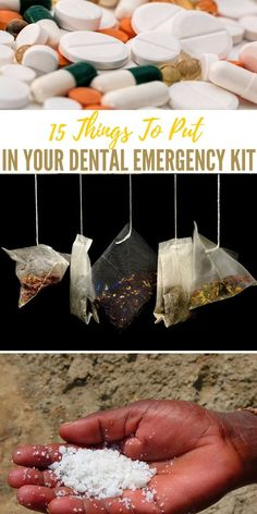 15 Things To Put In Your Dental Emergency Cook Emergency Preparedness Kit, Emergency Preparation, Emergency Supplies, Urban Survival, Survival Food, Survival Prepping, Survival Hacks, Survival Skills, Survival Items