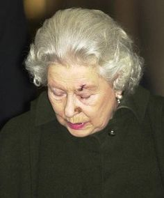 December 13, 2003: Queen Elizabeth II leaves the King Edward VII Hospital in London after having lesions removed from her face.