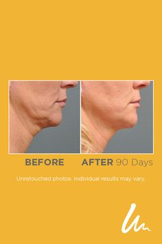 54 Best Ultherapy Before & Afters images in 2019 | Laser treatment
