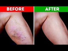 Natural Remedies for Varicose Veins - Everyday Remedy Varicose Vein Remedy, Varicose Veins, Remedies For Glowing Skin, Natural Remedies, Le Psoriasis, Circulation Sanguine, Blood Pressure Remedies, Blood Vessels, Skin Care