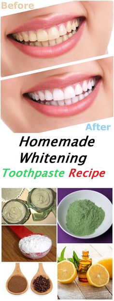Our teeth are a natural accessory very important that we care and that we are interested to groom him as well as possible. Teeth whitening treatments are not all the same. Some are quite delicate and relatively inexpensive, while others are more aggressive and can cause serious damage tooth enamel. Although natural, they should be... Read More