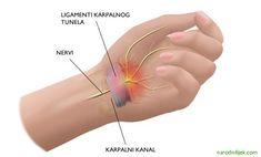 5 lijekova za ublažavanje boli sindroma karpalnog tunela