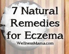 7 Natural Remedies For Eczema. http://vanisheczema.com/eczematreatment/?hop=0
