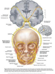 Facial VII - Cranial Nerves Anatomy Head, Facial Anatomy, Body Anatomy, Human Anatomy, Cranial Nerve 7, Nervous System Anatomy, Facial Nerve, Medical Terminology, Anatomy And Physiology