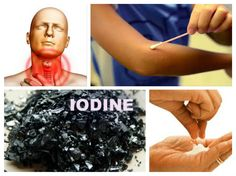 THIS SIMPLE TEST WILL SHOW YOU IF YOU HAVE AN IODINE DEFICIENCY! IT COULD BE LIFE SAVING! Iodine deficiency is one of the three most common nutritional deficiencies, along with magnesium and vitamin D, but people still go about their life thinking that it's not a big deal. Iodine is very important for the proper functioning of your body. It's the key to a healthy thyroid and efficient metabolism, and even comprises a large part of the thyroid hormone molecule itself.  Iodine has 4 very…