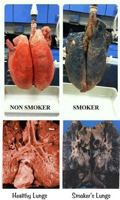 A reason to quit smoking Medical Photos, Medical Anatomy, Human Anatomy And Physiology, Nursing Tips, Respiratory System, Medical Field, Medical Illustration, Medical Science, Medical Information