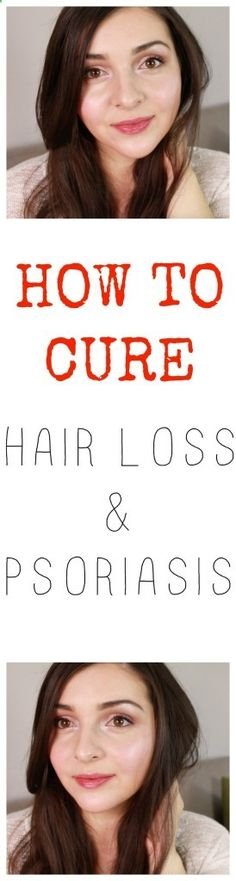 How to cure psoriasis, how to cure hair loss, how to heal psoriasis, dealing with psoriasis, healing hair loss, hair loss story, How I overcame my psoriasis and hair loss, Hair care routine, my natural hair care routine, natural hair care routine, natural treatment for psoriasis, products for psoriasis, shampoos for hair loss and psoriasis, healthy hair, how to get healthy scalp, healing balm for psoriasis, scalp massage, scalp oil massage, green beauty, green beauty blogger, natural b...