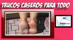 Remedios naturales para pies resecos y agrietados