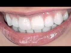 Take Care Of Your Teeth With These Dental Tips - http://teethreview.mytrafficbox.com/dental-care/take-care-of-your-teeth-with-these-dental-tips-2/