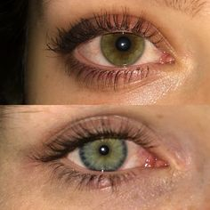 #weed #marijuana #eyes #weedeyes