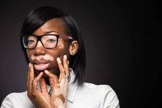 Carlene talks about her life experience with vitiligo; age of onset; how she uses Zanderm Vitiligo Camouflage and her personal feelings about vitiligo. Learn more at https://zanderm.com/carlenes-vitiligo-story/vit/1/