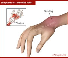 Signs and Symptoms of Tendonitis Wrist or Wrist Tendinitis Exercises For Tendonitis, Tendonitis Causes, Ganglion Cyst Wrist, Bursitis Shoulder, Wrist Pain, Kinesiology Taping, Ankylosing Spondylitis, Carpal Tunnel, Pain Relief