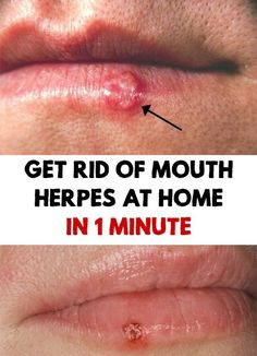 Mouth Herpes - Get rid of Mouth Herpes at Home in 1 Minute Incredible! Mouth Herpes ruined all your plans, it hurts and itches? Find out a homemade and old treatment to Get rid of Mouth Herpes at Home in 1 Minute! SEE DETAILS. Blister Remedies, Herpes Remedies, Natural Cough Remedies, Natural Health Remedies, Natural Cures, Home Remedies Cold Sores, Natural Healing, Blister On Lip, Herpes Genital